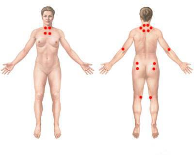 Fibromyalgia Trigger Points. Diagnosis of fibromyalgia